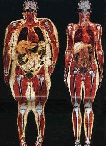 IRM de deux femmes du même âges et de la même taille présentant deux taux de masse grasse différents, afin de pouvoir comparer une personne grasse et une personne maigre.